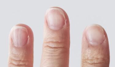 【ジェルネイル】爪の傷みが気になったら…自分でできる改善方法