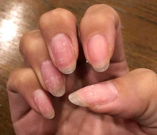 伸ばす 爪 ピンク 爪のピンクの部分を伸ばすには?健康な爪のポイント