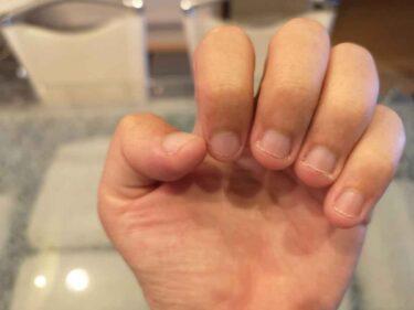 深爪の治し方!どうすれば深爪を改善・矯正できる?