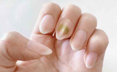 爪が緑色になるグリーンネイルの原因はカビ…ではない!